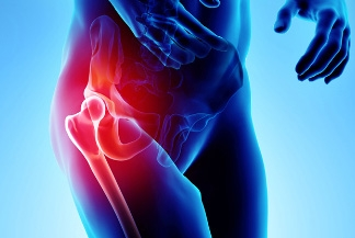 12 Common Hip Pain and Injuries in Athletes