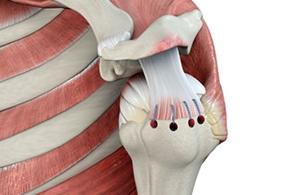 Anatomic tear deterioration was associated with nonoperative treatment of rotator cuff tears
