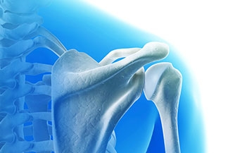 Arthroscopic subscapularis augmentation restored shoulder joint stability in athletes