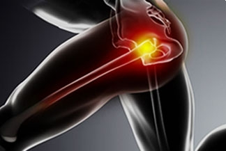 Common Causes of Hip Pain in the Athlete