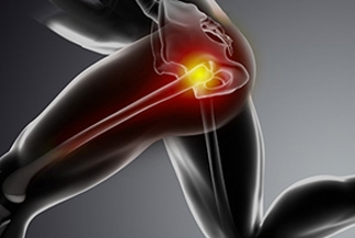 Gluteus Tendon Tears – A Common Cause of Hip Pain