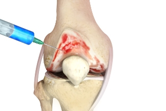 New device sheds light on mechanism, efficacy of arthritis treatment