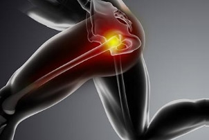 Proximal Hamstring Tendon Tears – A Common Cause of Hip Pain
