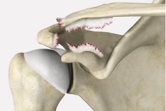 Shoulder Separation Causes, Symptoms and Treatments