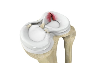 Study suggests surgery better than observation for older patients with meniscus tear