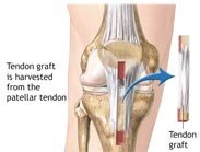 ACL Tear Treated Surgically