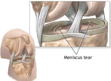 Overview of Meniscus Tears