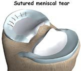 Meniscus and Cartilage Repair Surgery